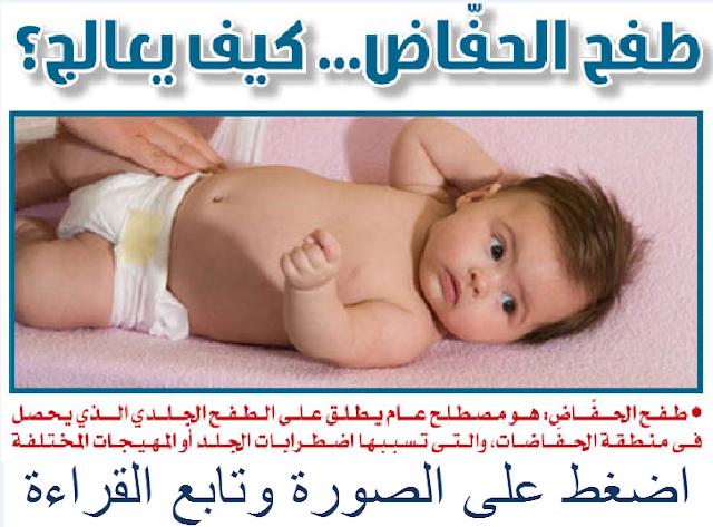التهاب الحفاضات عند الأطفال
