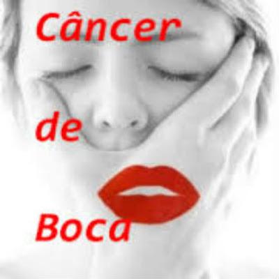cancer-de-boca-causas-prevencao-e-tratamentos