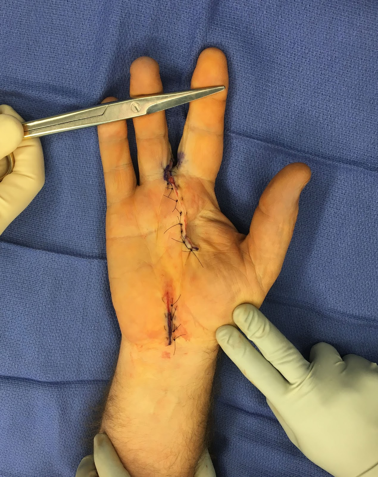 Congenital Hand and Arm Differences: Surgery for Macrodactyly