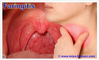 penyebab dan cara mengobati faringitis