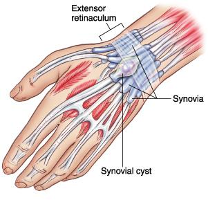 cisto sinovial no pulso diagnostico