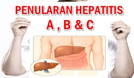 Cara Penularan Penyakit Hepatitis A B dan C