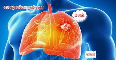 ung thư phổi - u phổi - u phoi - ung thu phoi - điều trị miễn phí ung thư phổi