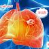 Cơ hội điều trị miễn phí với hàng ngàn bệnh nhân ung thư phổi
