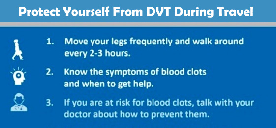 Protect Yourself From DVT During Travel