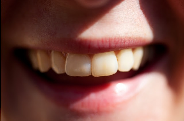 The US Stereotype That Says The Brits Have Bad Teeth