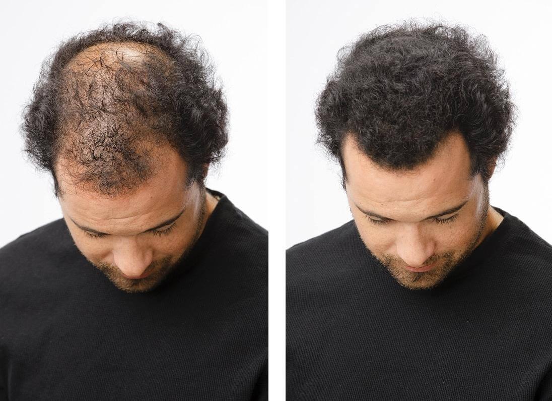 نتيجة بحث الصور عن علاج تساقط الشعر للرجال