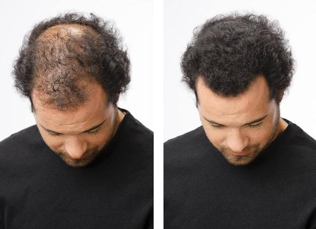 علاج تساقط الشعر بالثوم للرجال