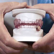 Sleep Apnea Oral Appliance Therapy and Treatment with Mouthpieces