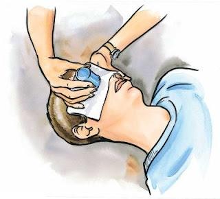 first aid chemical in eye الاسعافات الاولبة دخول مادة كيميائية الى العين