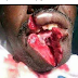 Woman Cuts Her Husband's Lips For Sending Money To His Lover. (SEE PHOTOS)