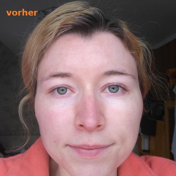 Haut vorher