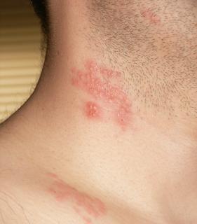 Ini Dia Faktor Penyebab Dan Cara Menangani Herpes Zoster