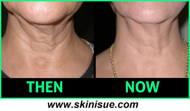 How to Tighten Neck Skin Loss