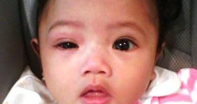 Penyebab dan Cara Menangani Mata Merah Pada Bayi
