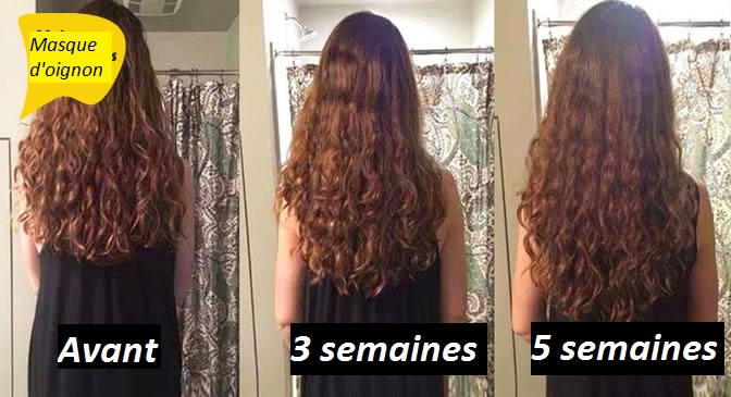 comment avoir de long cheveux naturellement et rapidement