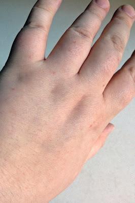Left hand, Day 5
