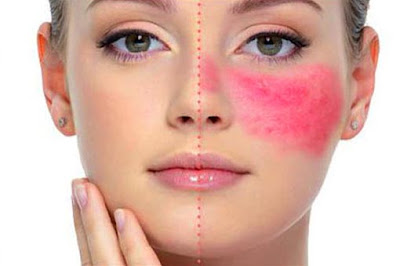 Some Of The Best Rosacea Skin Care Tips Treatment