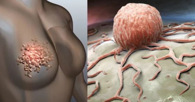 Alarming Signs Of Breast Cancer