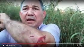 VIDEO: PR WASHINGTON LUÍS SOFRE GRAVE ACIDENTE AUTOMOBILÍSTICO