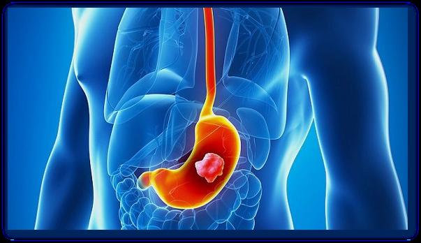 Ceaiuri pentru cancer de stomac