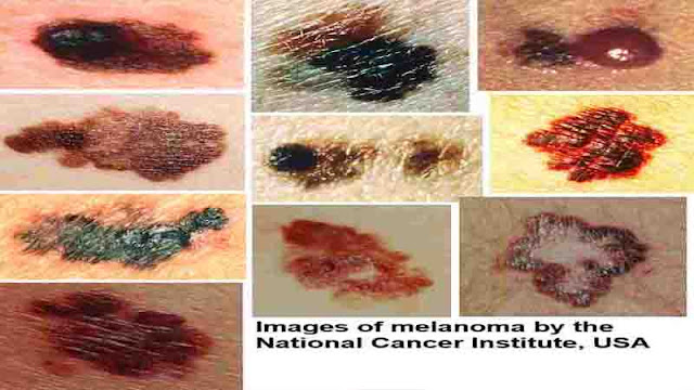 Melanoma Skin Checks