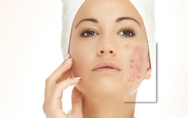 heat rash treatments