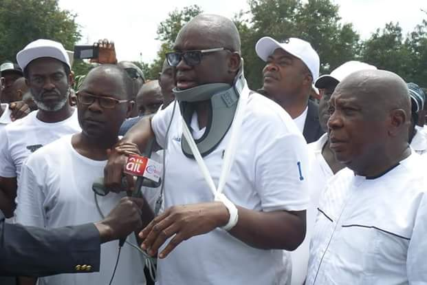 """Photos of """"Injured"""" Governor Fayose addressing Ekiti people at the Government House  Photos:""""Injured"""" Governor Fayose addresses Ekiti people at the Government House FB IMG 1531322515137"""