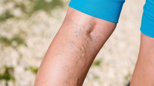 3 وصفات طبيعية لعلاج دوالي الساقين