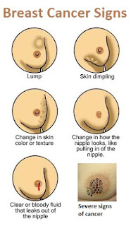 Healthy Breasts