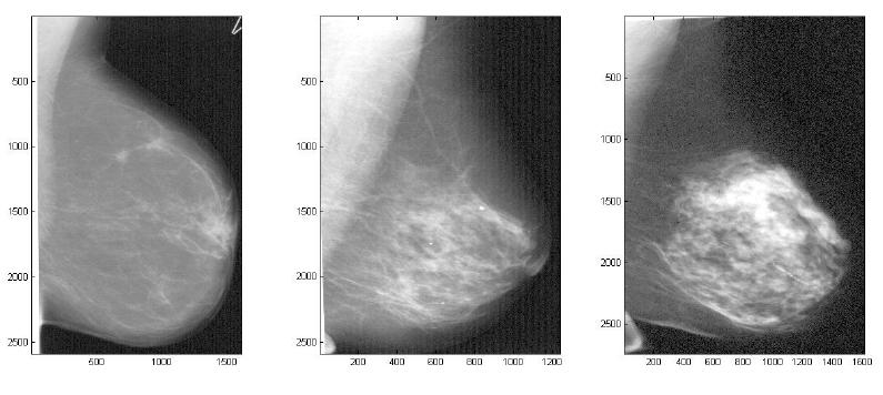 medina breast pump jpg 422x640