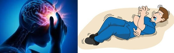 Cara Menyembuhkan Penyakit Epilepsi (Ayan)
