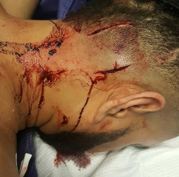 Merenguero dominicano (Mala Fe) es herido de varias estocadas por pandilleros en NY