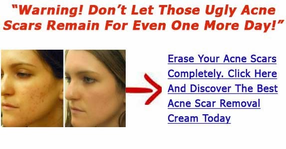 Best Pimple Scar Removal Cream Strategies To Reduce Zit Scarring