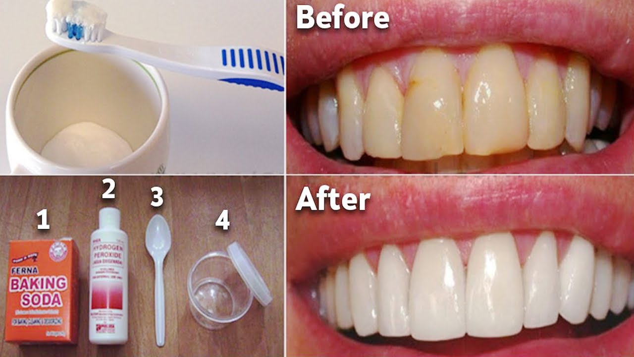 Very Potent Homemade Mouthwash That Removes Plaque From Teeth In 2 Minutes