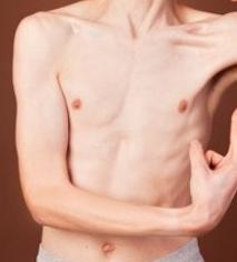 penyebab badan tidak bisa gemuk