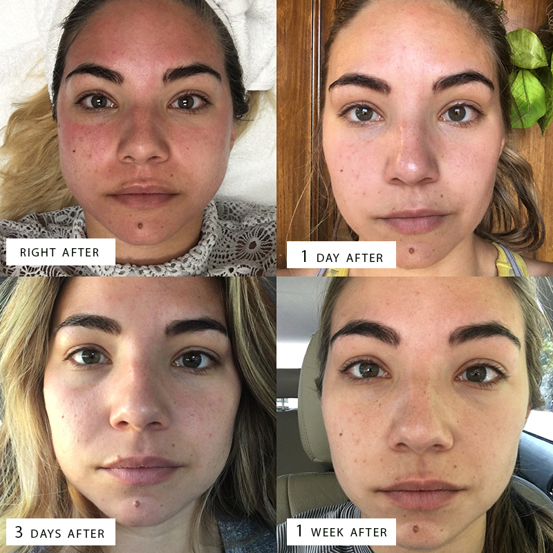 before and after of microneedling with PRP treatment, vampire facial, before and after of facial