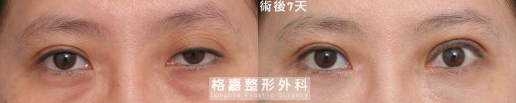 大小眼提眼肌手術台中推薦-ptosis07