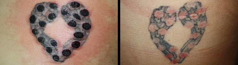 Small Acid Tattoo: Frequently Asked Questions