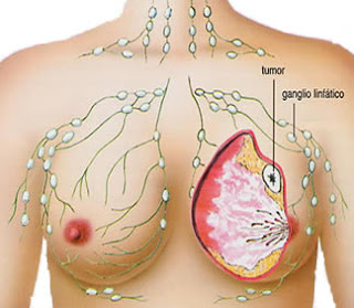 Resep Obat Kanker Herbal Mujarab, Ciri-ciri Benjolan Kanker Payudara, obat alami kanker payudara