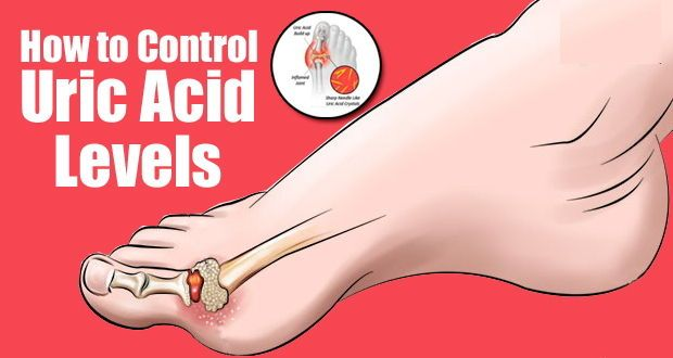 How to Lower Uric Acid Levels Naturally