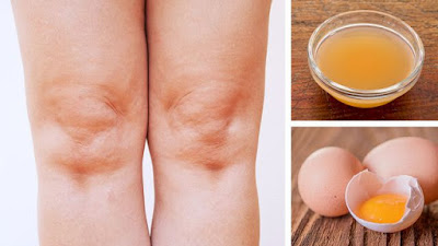 How To Use ACV And Egg Yolks For Knee Pain