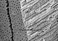 "<Imgsrc=""hipersensibilidad-ultraestructura.jpg"" width = ""300"" height ""211"" border = ""0"" alt = ""Estructura de los túbulos dentinales"">"
