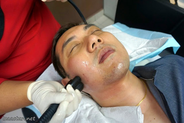 Immediately after the injections, my face was given the 'Venus Freeze' treatment