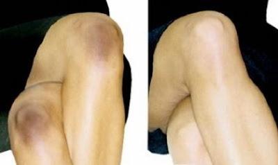 Astuces beauté pour blanchir les genoux en une semaine