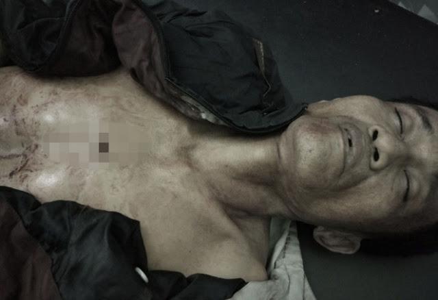 Jenazah Andri Sabar Halawa saat berada di rumah sakit.