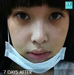 짱이뻐! - Korean Face Contouring, Wonjin is The Answer
