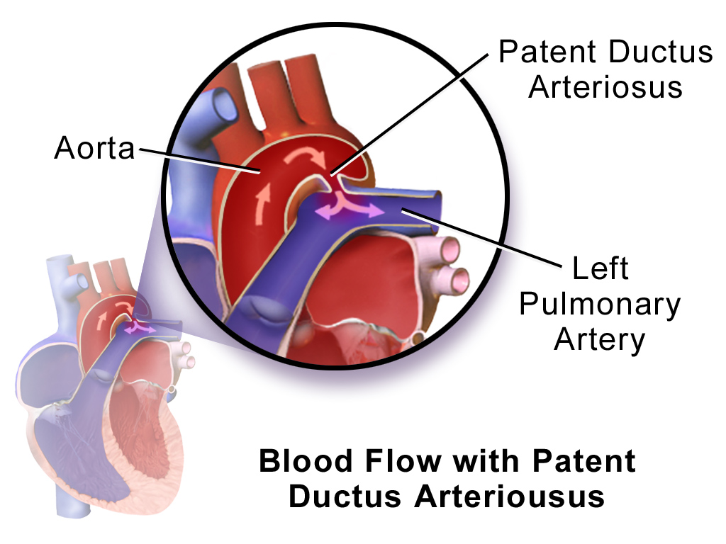 Patent Ductus Arteriosus Pda How To Guide Tips And Tricks