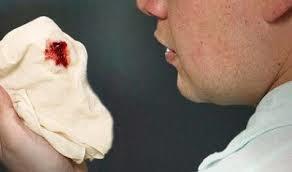 Penyebab Batuk Berdarah dan Obat Herbal Batuk Berdarah Paling Ampuh