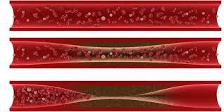 Pengobatan Tradisional Penyempitan Pembuluh Darah